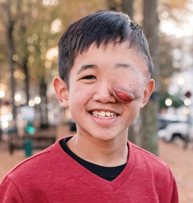 A smiling young boy whose Neurofibromatosis has disfigured his left eye.